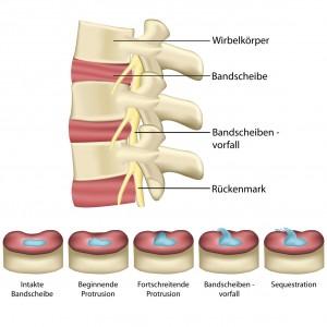 Bandscheibenvorfall - Wirbelsule