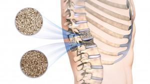 Die Grafik zeigt den Längsschnitt durch zwei Rückenwirbel; der obere Rückenwirbel ist gesund und mit normaler Knochendichte; der untere ist durch Osteoporose geschädigt und durch abnehmende Knochendichte eingefallen ( Fischwirbel ). Die Details der Knochendichte sind in den ausgezoomten Kreisen noch einmal hervorgehoben.