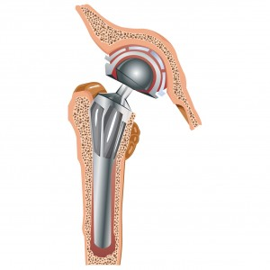 Cementless Arthroplasty